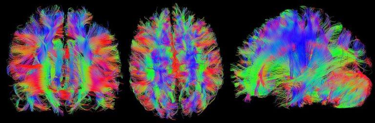 Read more about the article La mesure de l'intelligence chez les personnes autistes non verbales